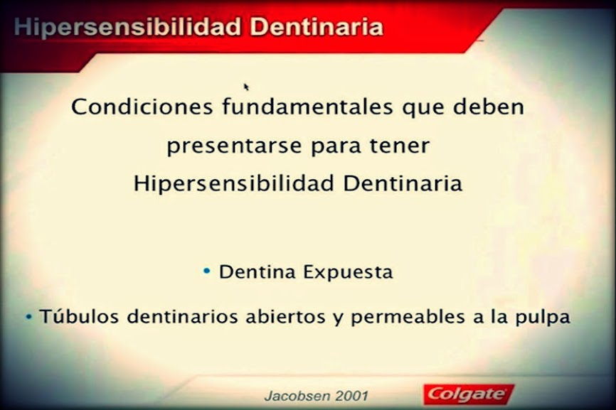 hipersensibilidad-dentinaria