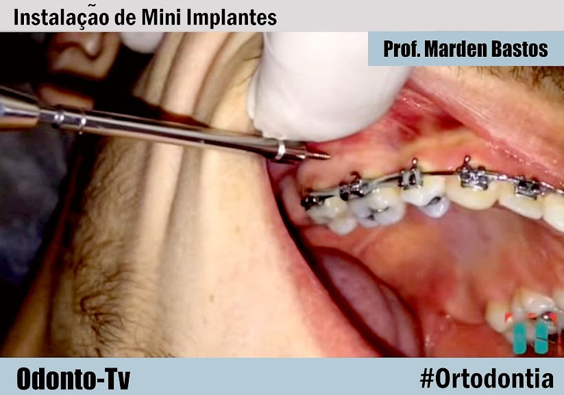 ortodontia-Mini-Implantes