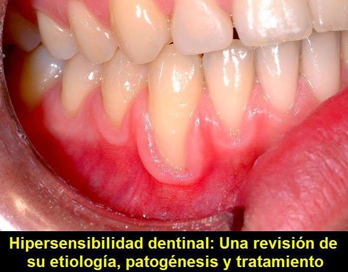 Hipersensibilidad-dentinal