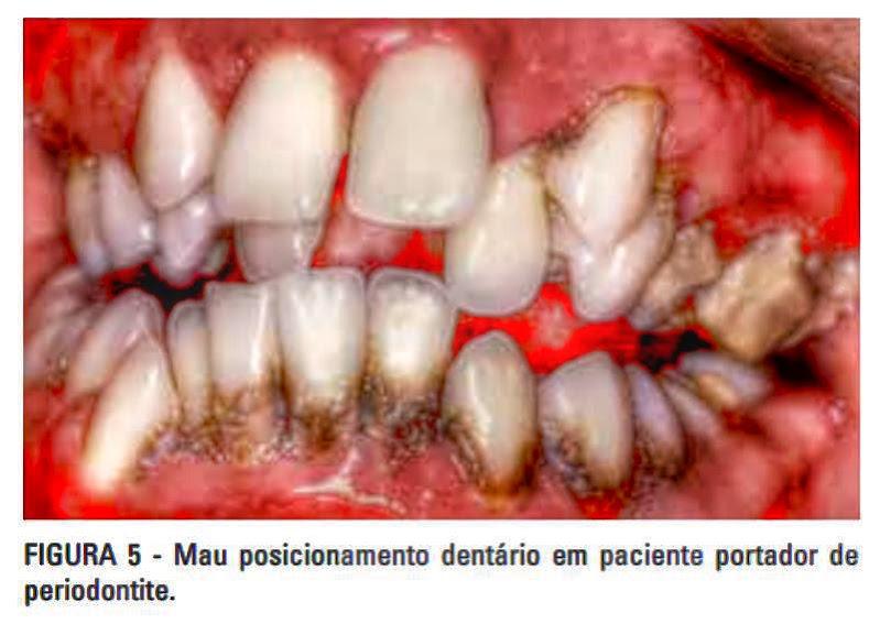 dentes-mal-posicionados
