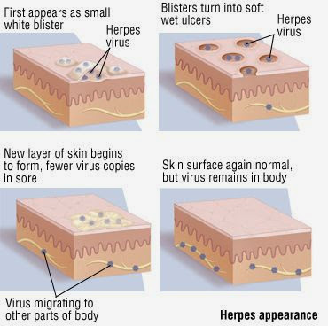 There is no permanent cure for herpes but it can be controlled 2