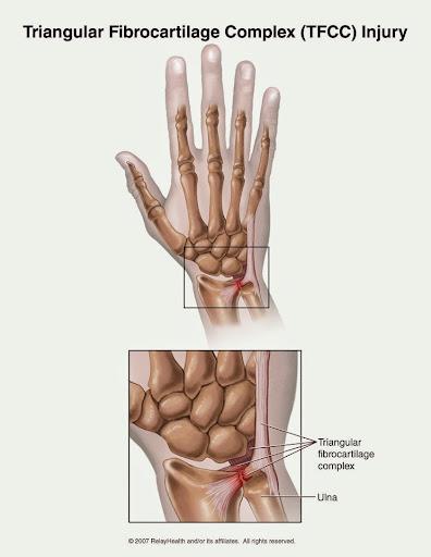 運動照護教室- 手腕運動傷害及復...