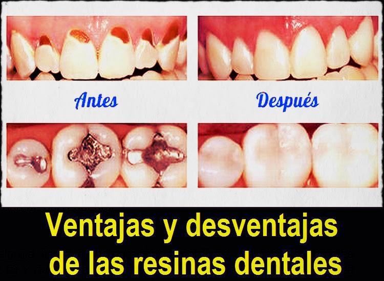 Resinas Dentales