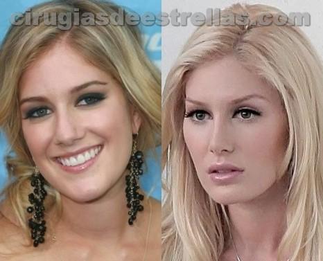 Heidi Montad antes y despues
