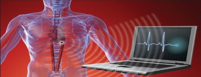 Implantes Médicos Inalámbricos