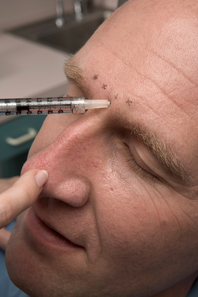 Botox Injection Site