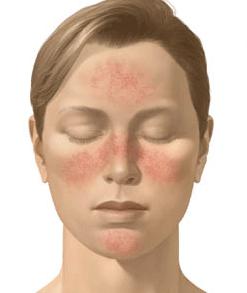 rosacea-sintomas