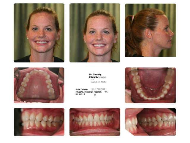 my invisalign experience edwards family dental pictures of my teeth