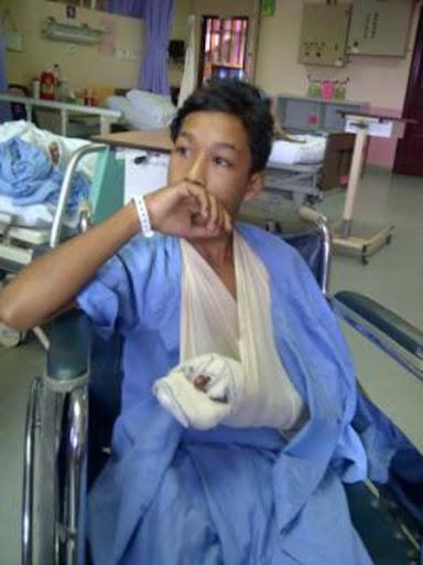 Remaja patah lima jari kanan akibat mercun