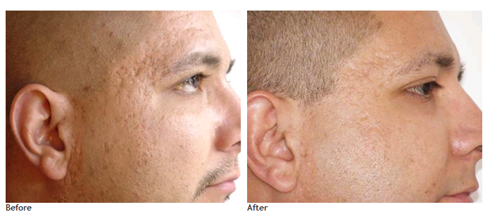 Before and after using dermaroller pictures - Dermaroller visage avis ...