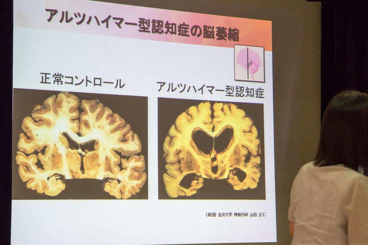 アルツハイマー病の脳の状態(萎縮がはじまり、血流が悪くなっていく)