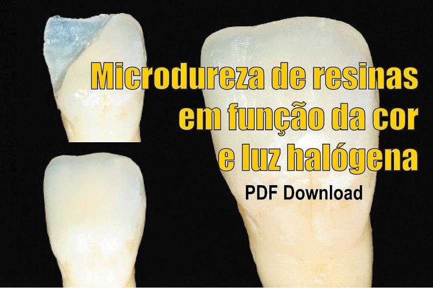 resinas-dentales