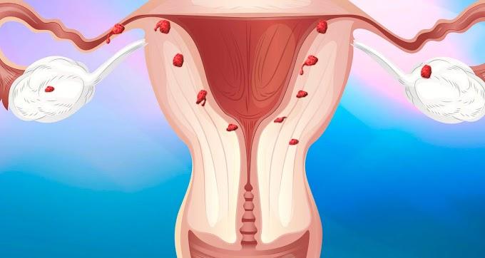 Эндометриоз – болезнь-загадка: Что это такое?