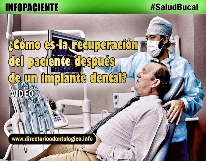 cuidados-implantes-dentales