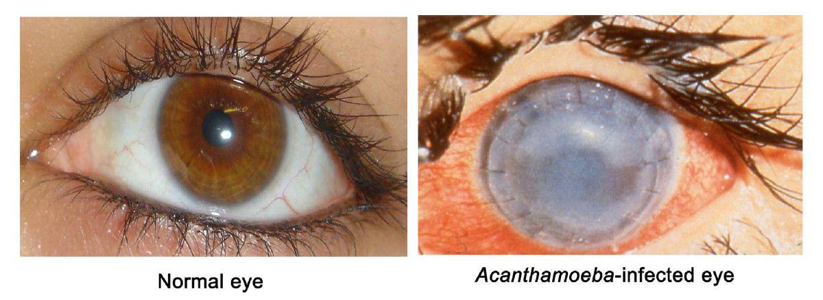 Ancathamoeba keratitis