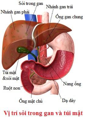 Phương pháp điều trị sỏi trong gan