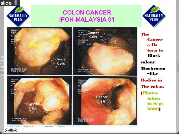 colon%252520cancer2 Testimonial Naturally Plus