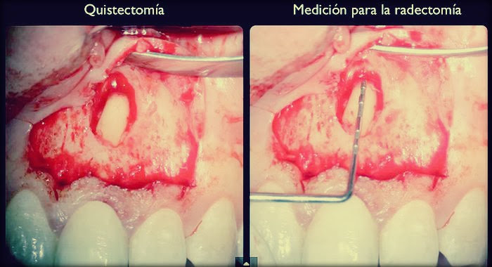 microcirugia-apical