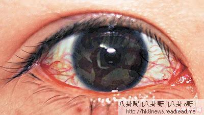 紅眼症是什麼?-紅眼症|紅眼症