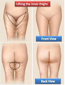 scar of inner thigh lift