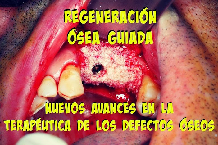 regeneracion-osea-guiada