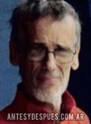 Luis Alberto Spinetta,
