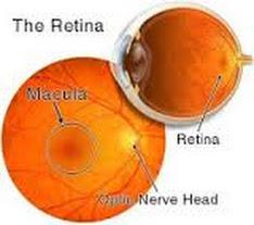 Solusi Sehat Pengobatan Pendarahan Retina