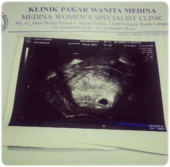 gambar baby scan Izreen Azminda, Izreen Azminda pregnant, Izreen Azminda pregnant