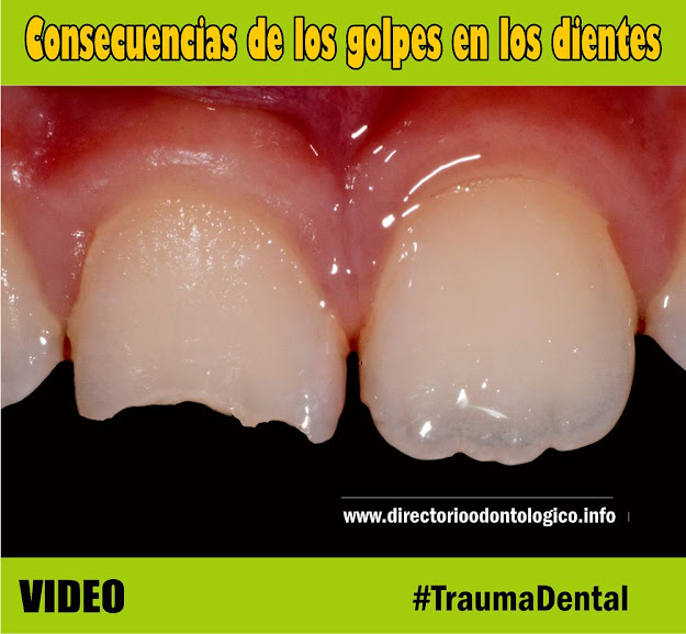 traumatismo-dental