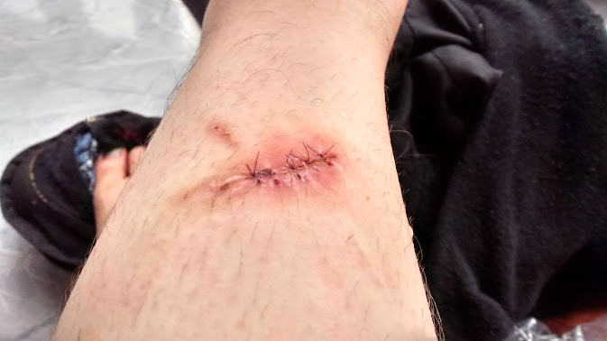 Travel problems! Stitches and Credit Cards? - injury creditcard mail
