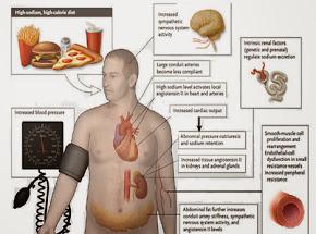 Obat Penyakit Darah Tinggi Atau Hipertensi
