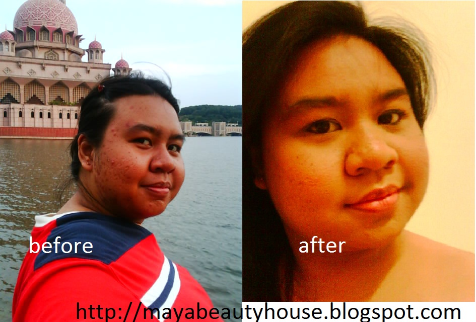 Glutathione Injection Before and After http://mayabeautyhouse.blogspot.com/p/testimonial-whitening-injection.html