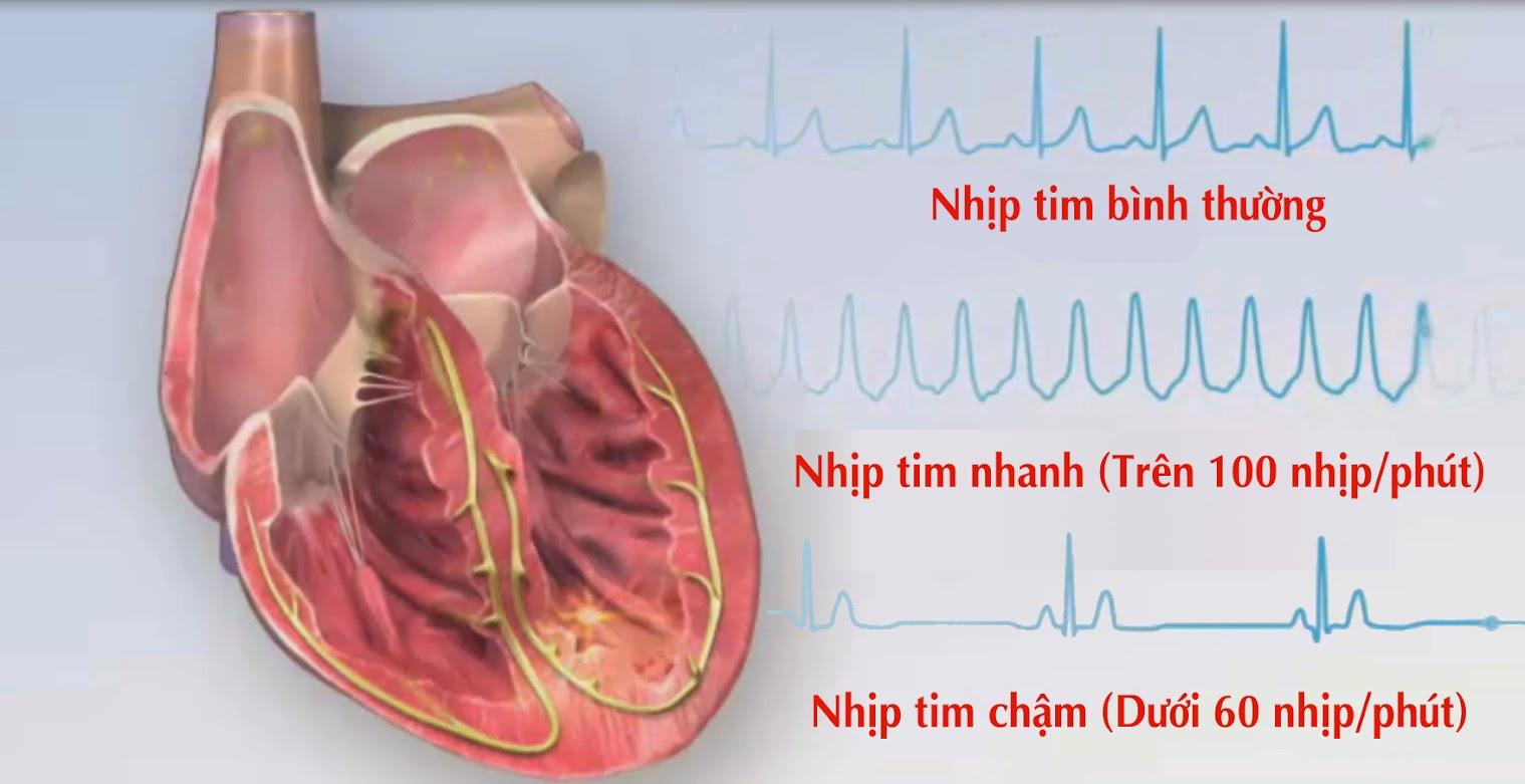 Rối loạn nhịp tim và những điều không nên bỏ qua