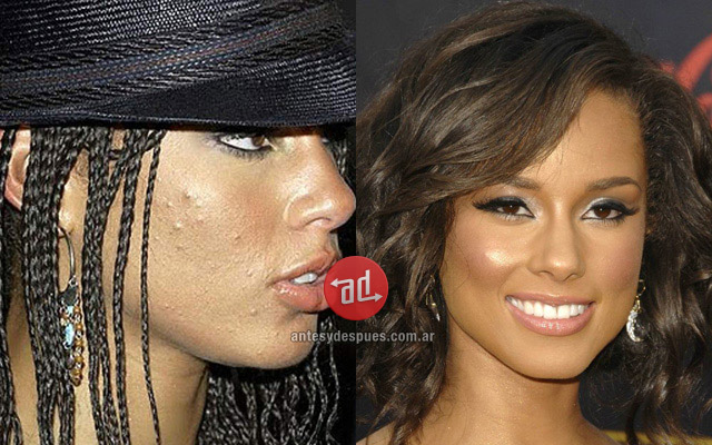 Photos of Alicia Keys with acne