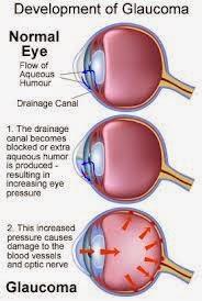 Gejala Glaukoma & Obatnya