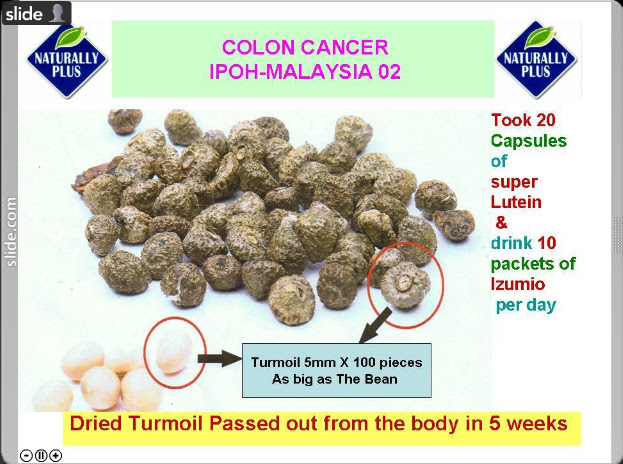 colon%252520cancer Testimonial Naturally Plus
