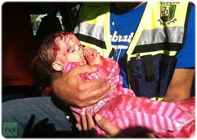 kanak - kanak tercedera, bayi comel di gaza