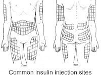 Insulin Injection Sites Diagram