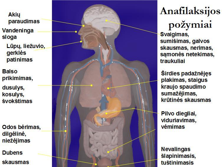 Pilvo sienelių išvaržų atsiradimo priežastys ir gydymo metodai.