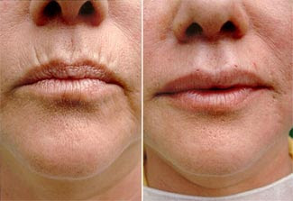 bioplastia-labios