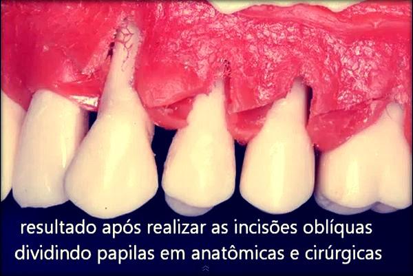 Cirurgia-Plástica-Periodontal