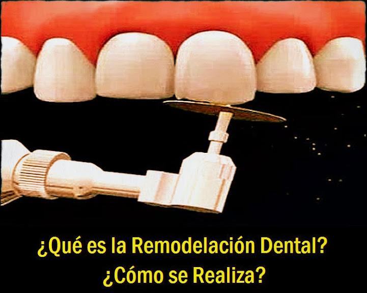 remodelacion-dental