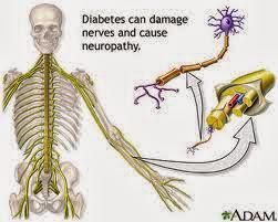 MIRTOPLUS Cegah Komplikasi Diabetes Agar Tidak Bertambah Parah