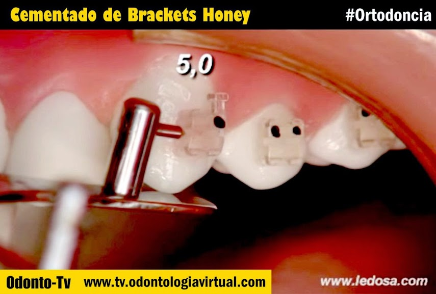 Cementado-Brackets-Honey