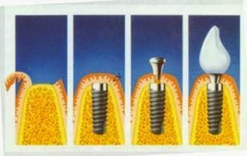 種植牙是的準備與過程