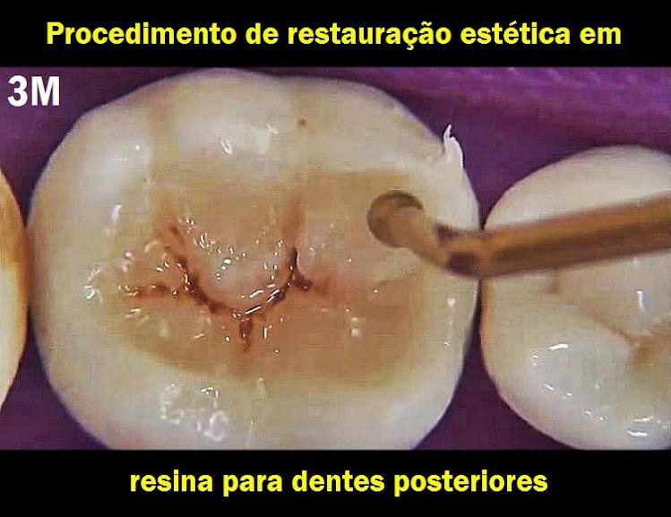 restauração-estética-resina
