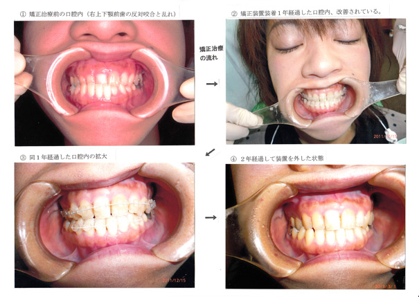 こまつ歯科からのお知らせ