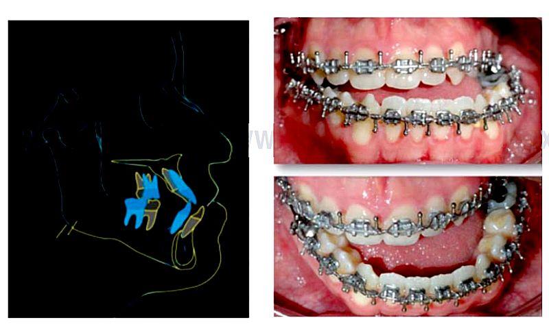 prognatismo-mandibular