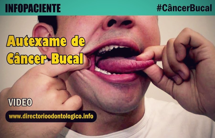 Autoexame-Câncer-Bucal
