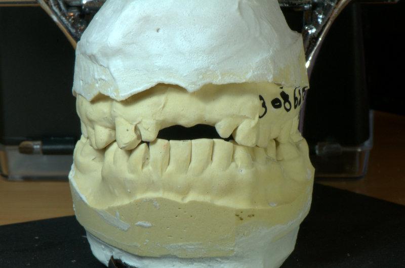 Upper Anterior Teeth حالة مريض DSC_1921.jpg
